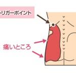 トリガーポイント(腰)